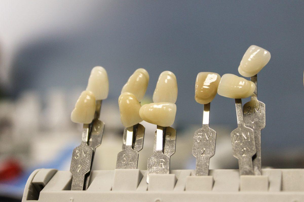 Prześliczne urodziwe zęby również świetny cudny uśmieszek to powód do dumy.